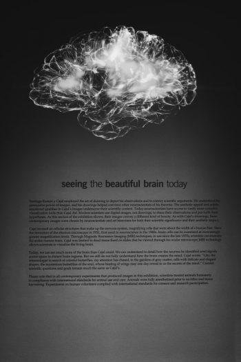 brein visolie hersenen